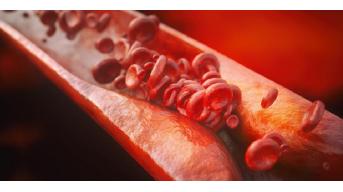 Il colesterolo, quali rischi e come combatterlo